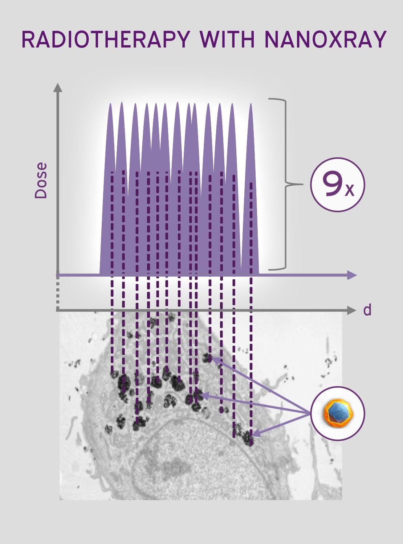 NanoXray Radiotherapy 2